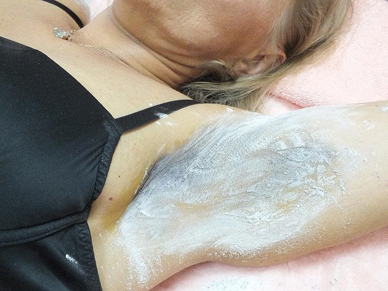Лечение потливости (гипергидроз) ботоксом